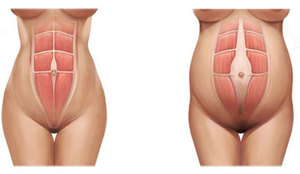 Tratamiento Diastasis abdominal