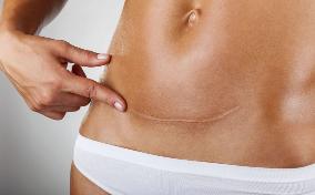 tratamiento cicatriz de mujer con fisioterapia